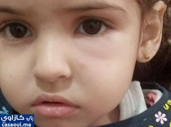 ممرضة تعتدي على طفلة بمستشفى الهاروشي والادارة تحميها